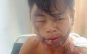 Công an vào cuộc xác minh clip nam thanh niên nghi bị người thân đổ nước sôi lên người gây bỏng nặng