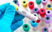 3 em bé phơi nhiễm HIV do bị người nghi ngáo đá tấn công, xử lý vết thương ra sao?