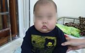 Bé 17 tháng phù mặt bất thường, tăng cân siêu tốc, suy thượng vì bố mẹ cho uống loại thuốc này