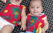 Rớt nước mắt hoàn cảnh bé sinh đôi mắc bệnh tim phức tạp cần phẫu thuật gấp