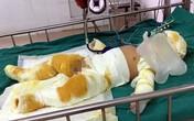 Thương tâm bé trai  7 tháng tuổi cùng cha mẹ bị bỏng nặng do hở gas lúc đun nấu