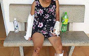 Bình Thuận: Vợ bị chồng đánh gãy 2 tay 1 chân