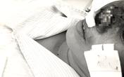 4 người chết vì loài khuẩn 'ăn mũi người' - căn bệnh tưởng chừng bị lãng quên