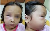 Bé gái suýt chết vì sâu răng, nha sĩ trách cha mẹ hại con vì thói quen tai hại