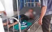 Bé trai bị chú họ dùng dao chém đứt lìa bàn tay: Mắt trái đã bị hỏng hoàn toàn