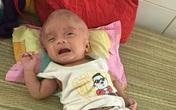 Căn bệnh chú lính chì Phạm Đức Lộc mắc suốt 3 năm qua có thể điều trị khỏi