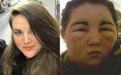 Người phụ nữ bị sưng phồng mặt vì dị ứng khi đi nhuộm tóc