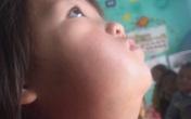 Xót thương bé gái vùng cao mồ côi mẹ, gương mặt méo lệch, nhà nghèo không có tiền chữa trị