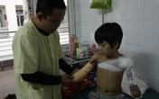 Cậu bé cụt hai tay sau điện giật Nguyễn Nhật Long phải ăn Tết ở bệnh viện