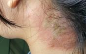 Thanh Hóa gia tăng đột biến bệnh nhân bị viêm da do tiếp xúc với kiến ba khoang
