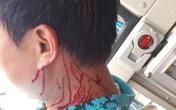 Phụ xe khách tố bị nhóm thanh niên cầm tuýp sắt chặn đánh gục giữa đường