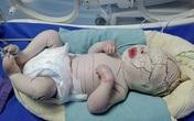 Bé sơ sinh da khô cứng do bệnh cực hiếm