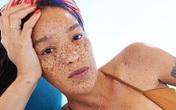 Nữ người mẫu có gương mặt toàn tàn nhang