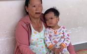 Bé gái 3 tuổi nghi bị mẹ đẻ đánh chấn thương sọ não đang nguy kịch