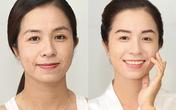 Nữ MC đài truyền hình Bình Thuận: Quyết tâm làm đẹp từ một lời chê bai