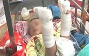 Làm giấy khai sinh cho bé 4 tháng bị bố đánh gãy chân: Mang họ mẹ, tên cha để trống