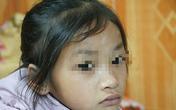 Mẹ tử nạn khi dắt con ăn xin trên cầu Thanh Trì: Bé gái 7 tuổi bây giờ ra sao?