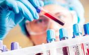Nam giới đột tử không rõ nguyên nhân tại quận Bắc Từ Liêm, Ban chỉ đạo Phòng chống dịch TP Hà Nội lấy mẫu bệnh phẩm đi xét nghiệm