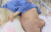 Hãi hùng khối u nặng... 42kg vừa được BV Đại học Y Hà Nội cắt bỏ