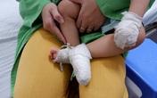Bé trai bỏng nặng bộ phận sinh dục vì ngã vào nồi canh