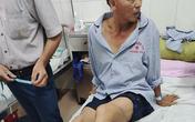Khởi tố 2 đối tượng dùng dao chém công an nhập viện