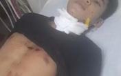 Tây Ninh: Nam thanh niên sát hại bạn gái rồi tự tử vì nghi ngờ... hết yêu