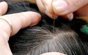Tóc xoăn, ngứa có nên nhổ: Bác sĩ khẳng định không nên vì chỉ gây thêm hại