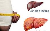 Dấu hiệu gan nhiễm mỡ có quá nguy hiểm?