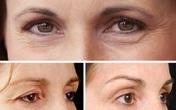 Nguyên nhân gây sụp mi mắt