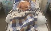 """Bình Dương: """"Hiệp sĩ"""" bị trọng thương trong lúc đuổi theo kẻ trộm xe máy"""