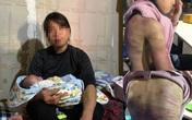 Trần tình của bà mẹ nhẫn tâm bạo hành con gái 12 tuổi ở Hà Nội