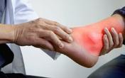 Bệnh lý đặc biệt sau Tết hay gặp dễ nhầm với bệnh lý xương khớp, chủ quan có thể dẫn tới tàn phế