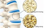 Những biến chứng đáng sợ của loãng xương bị nhiều người bỏ qua, hãy ngăn chặn ngay hôm nay!