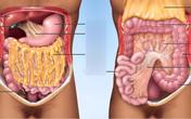 Mang khối u 10kg vẫn chủ quan vì tưởng mình béo