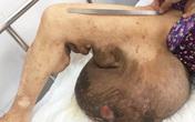 Người phụ nữ được cắt bỏ khối u khổng lồ 19 kg