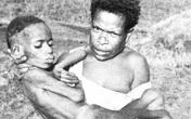 Loại bệnh lạ khiến người mắc phải cười cho đến chết, nguyên nhân đến từ một hủ tục 'rợn gáy' của bộ tộc cổ xưa