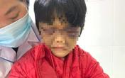 Bức xúc: Bé gái 6 tuổi ở Hải Dương bị mẹ đẻ đánh, nhốt trong phòng trọ