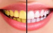 Ngạc nhiên với cách làm răng trắng bóng sạch đơn giản, rẻ tiền mà không phải dùng hóa chất