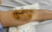 Lần đầu tiên Việt Nam phẫu thuật thành công thay khớp gối nhân tạo cho người mắc lao khớp