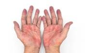Mệt mỏi, da mẩn đỏ: Có thể virus đang tàn phá lá gan