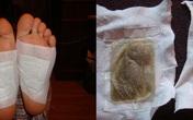 """""""Lật mặt"""" miếng dán thải độc chân dưới góc nhìn của chuyên gia Mỹ: Lợi đâu chưa thấy đã tốn tiền và hỏng… da chân"""