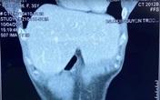 Phẫu thuật thành công ca hóc xương cá cực kỳ hiếm gặp