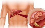Kỳ lạ loài cây có hạt độc, nhưng thân và lá trị viêm gan có vi rút hiệu quả