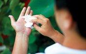 Khổ sở vì bàn tay tiết quá nhiều mồ hôi: Bác sỹ tư vấn hướng điều trị
