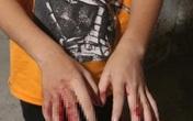 Sự thật vụ bé trai ở TP.HCM bị cha đánh nát tay