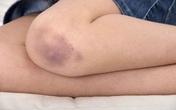 Vết bầm tím trên cơ thể, tưởng đơn giản nhưng có thể là dấu hiệu cảnh báo bệnh lý nguy hiểm