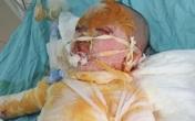 Cơ thể biến dạng, mặt loang lổ do bỏng cồn, bé gái 5 tuổi khẩn thiết cần sự giúp đỡ