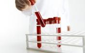 5 cách hỗ trợ giảm axit uric máu an toàn, hiệu quả nhờ thảo dược