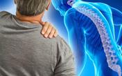 Đẩy lùi cơn đau mạn tính, kéo dài nhờ sản phẩm giảm đau thảo dược - Xu hướng giảm đau mới hiện nay