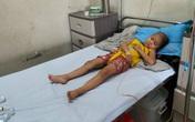 Xót thương bé gái 5 tuổi đau đớn vì bệnh ung thư